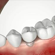 Gateway to a natural teeth