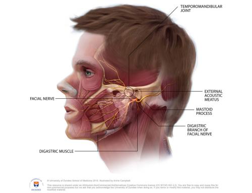Temporomandibular Disorder (TMJ)