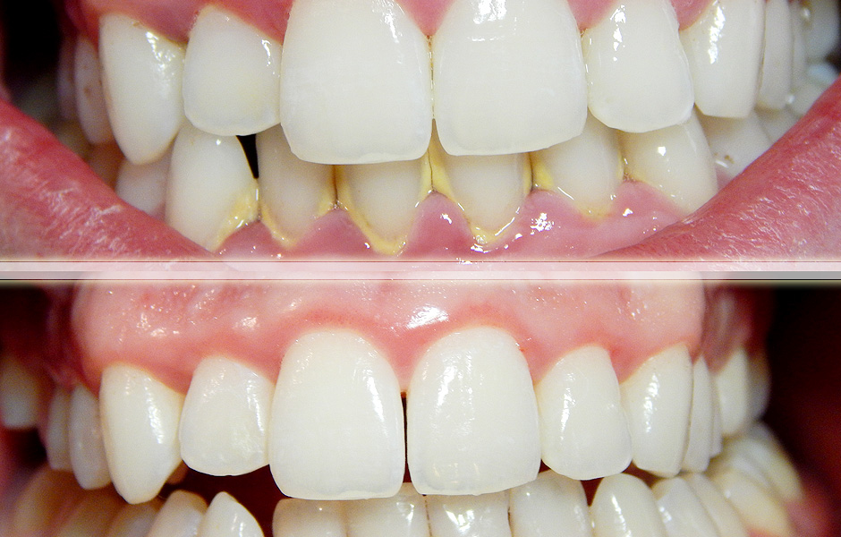 Periodontal disease (GUM INFECTION)